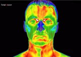 infrared-medical-thermography-head