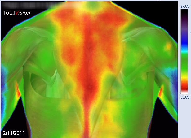 medical thermography traps